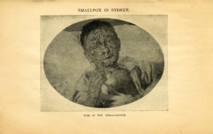 The History and Effects of Vaccination, with illustrations of cases of smallpox which occurred in Sydney. (PDF download)